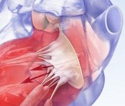 Mitral-aortal qüsurun səbəbləri