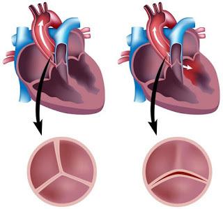 mitral-aortal qüsur nədir?