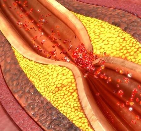 Obliterasiyaedici aterosklerozun səbəbləri