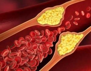 Postinfarkt stenokardiyanın səbəbləri
