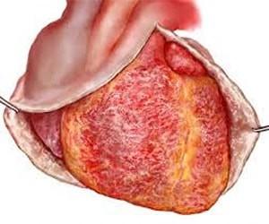 postperikardiotom sindrom nədir?