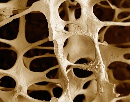 postmenopauzal osteoporoz nədir?