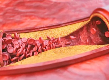 Prinsmetal stenokardiyasının səbəbləri