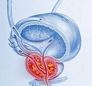 prostat vəzinin absesi nədir?