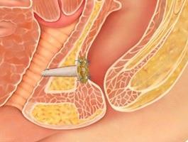 Rektovaginal fistulanın səbəbləri
