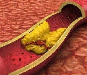 Sakitlik stenokardiyasının səbəbləri