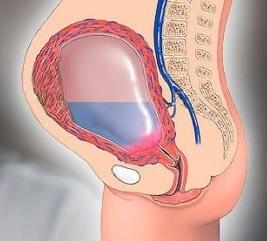 Serozometranın səbəbləri