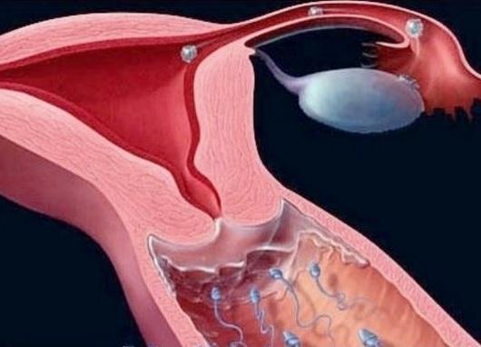 Servikal kanalın stenozunun səbəbləri