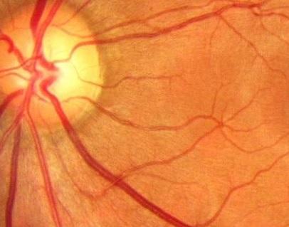 torlu qişanın angiospazmı nədir?
