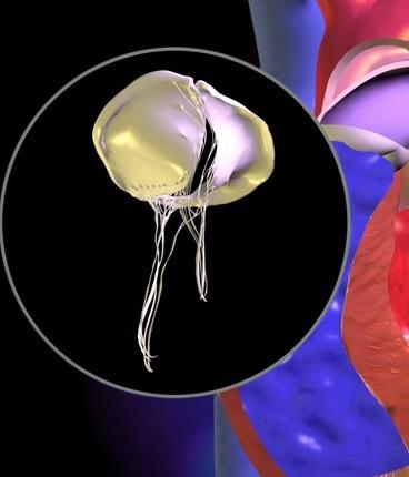 Trikuspidal stenozun yaranma səbəbləri