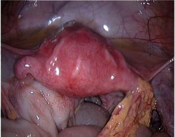 Tuboovarial absesin səbəbləri