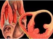 ürək anevrizması nədir?