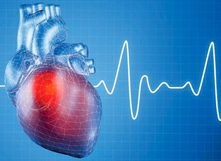 Ürək çatışmazlığının səbəbləri