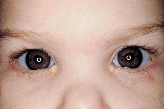 uşaqlarda allergik konyunktivit nədir?