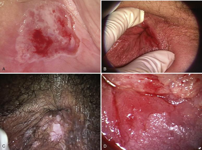 vulvanın displaziyası nədir?