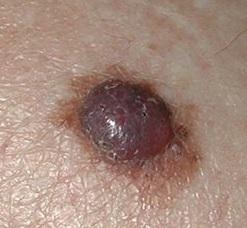 vulvanın melanomasının səbəbləri