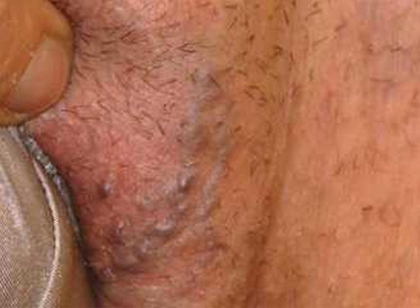 Vulvar varikozun səbəbləri