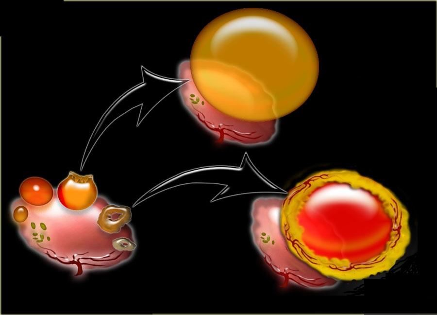 Yumurtalığın follikulyar kistasının səbəbləri
