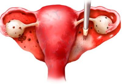 Yumurtalıqların endometriozunun səbəbləri