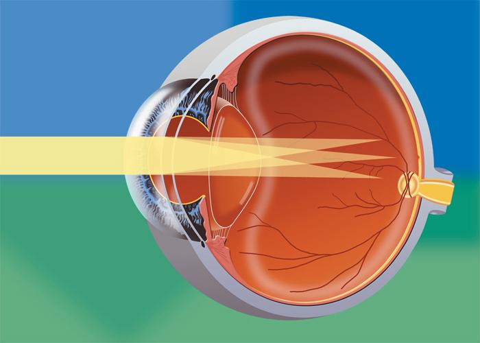 astiqmatizm nədir?