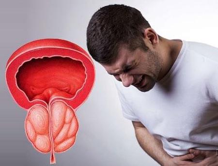 Prostatitin ağırlaşmaları