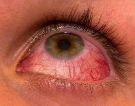 İİV-in oftalmoloji təzahürləri nədir?