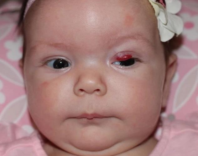 Gözün hemangiomasının səbəbləri