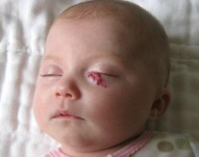 Gözün hemangiomasının əlamətləri