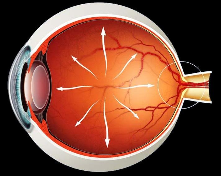 Qlaukomanın yaranma səbəbləri