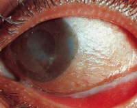 difteriya mənşəli konyunktivit nədir?