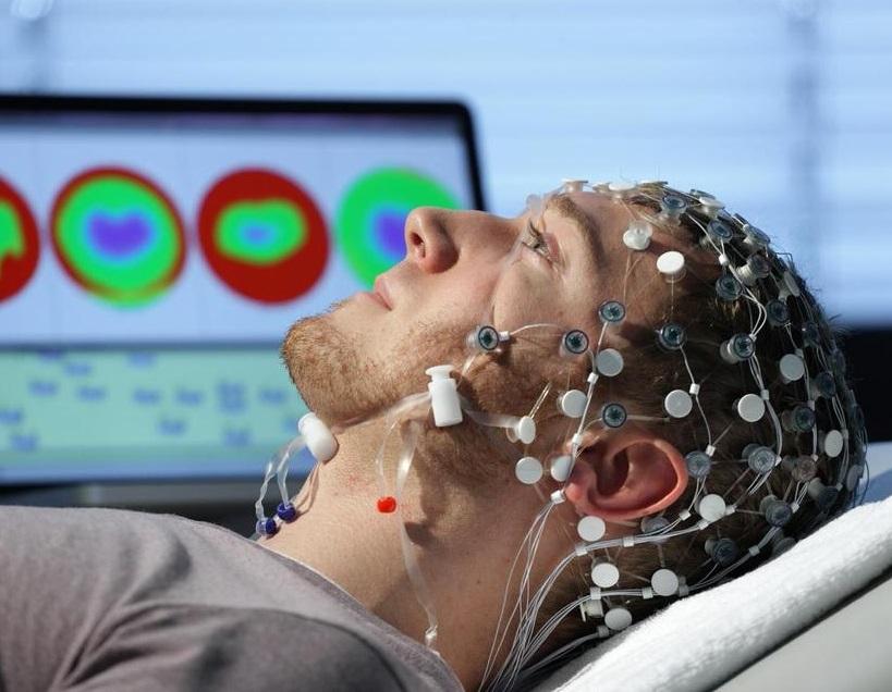 Epilepsiyanın müalicəsi