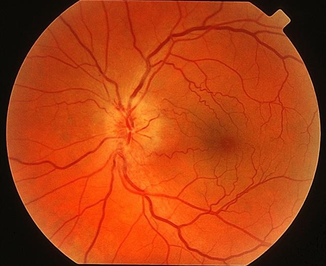 görmə sinirinin işemik neyropatiyası nədir?