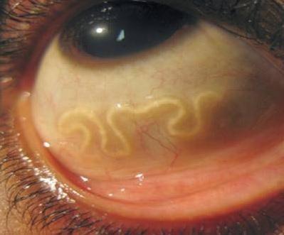 gözün dirofilyariozu nədir?