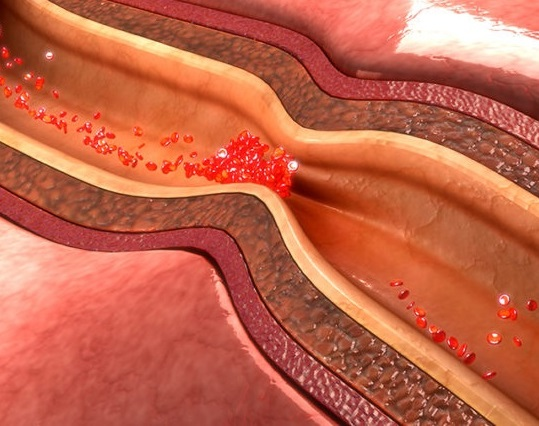 hipertoniya xəstəliyinin səbəbləri