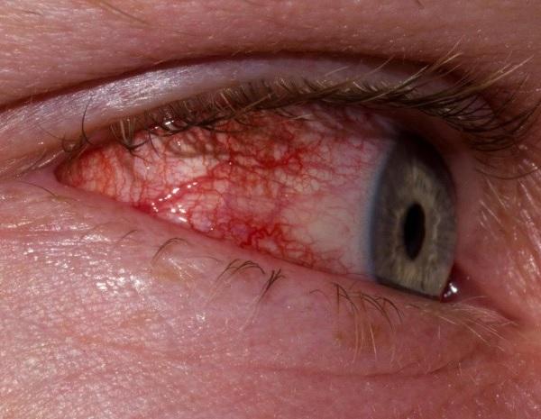 İridosiklitin əlamətləri
