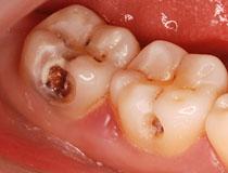 Diş ağrısının müalicəsi