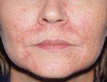 Perioral dermatitin səbəbləri