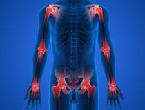 Oynaq ağrısının səbəbləri